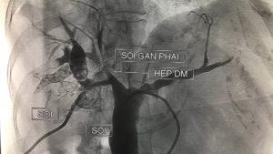 Tán sỏi trong gan sử dụng cổng 3,5mm
